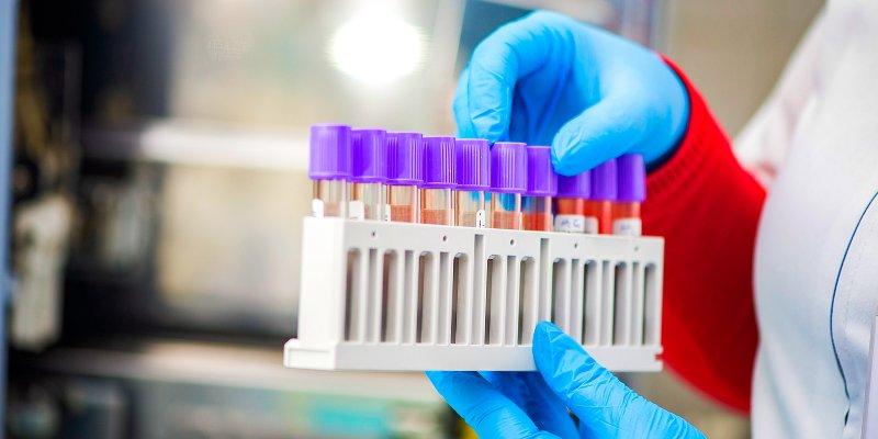 Тест на антитела к COVID-19: что это и зачем он нужен?